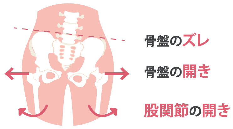 骨盤のズレ 骨盤の開き 股関節の開き